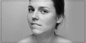 Hydrafacial visage