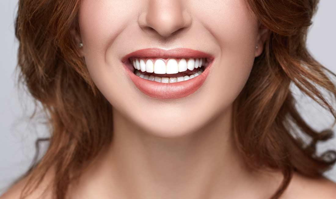 Lèvres pulpeuses Acide Hyalurnique Pontoise