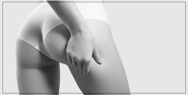 Traitement de la Cellulite Dr MAteo Delamarre Pontoise